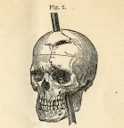 phineas gage's Avatar